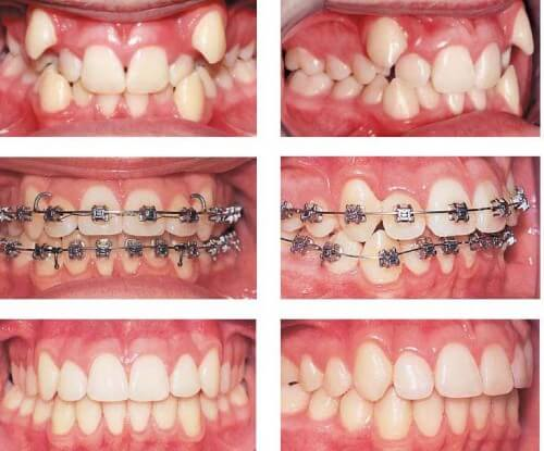 Niềng răng là giải pháp tốt nhất dành cho con trai có răng khểnh