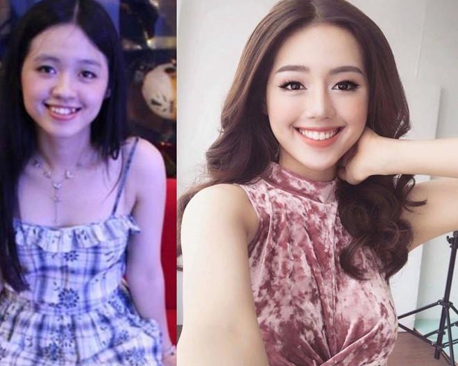 Hình ảnh trước - sau khi niềng răng Vline của hot girl Khánh Linh