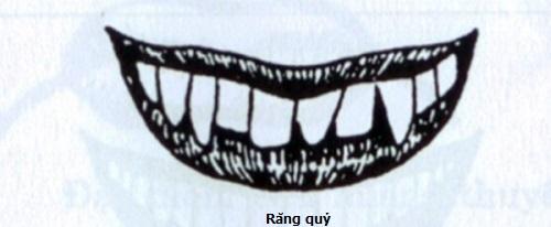 răng quỷ là răng như thế nào