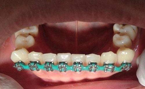 những ca niềng răng hỏng