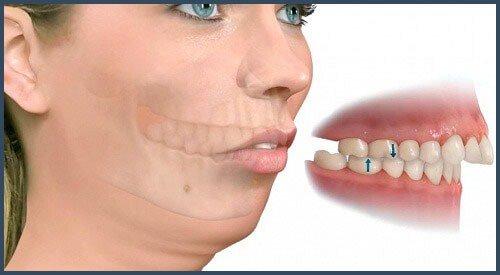 Phẫu thuật hàm hô trong trường hợp hô do hàm