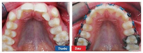 Bạn có đoán được răng di chuyển như thế nào trong trường hợp này không?