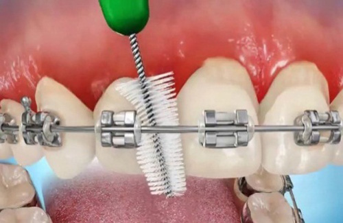 Vệ sinh răng miệng đúng cách khi niềng răng