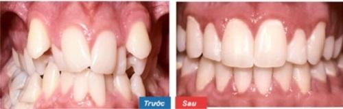 Một trường hợp răng khấp khểnh ở mức độ nặng và đã thay đổi 180 độ sau khi niềng răng