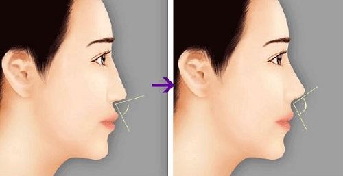 Niềng răng thay đổi góc nghiêng được không?