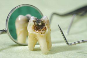 Răng khôn bị sâu phải làm sao