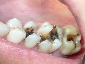Làm sao để khắc phục tình trạng sâu răng