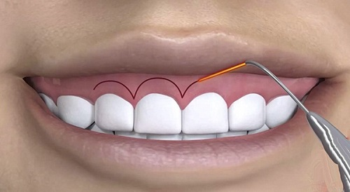 Cách chữa cười hở lợi bằng laser