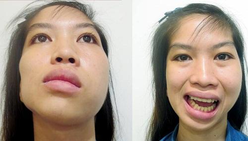 Cách chữa lệch mặt bẩm sinh