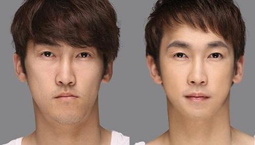 cách chữa mặt lệch bên trái