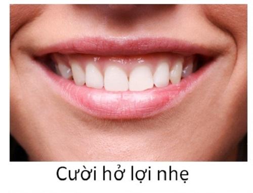có nên chữa cười hở lợi không