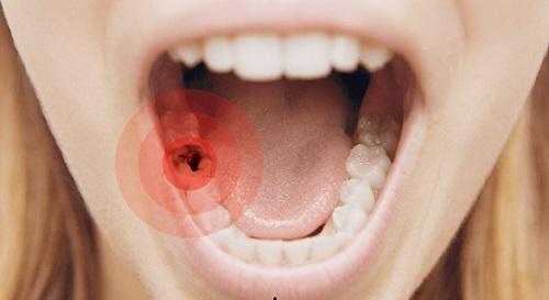 răng hàm bị sâu đau nhức