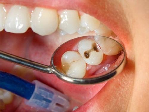 răng hàm sâu bị lung lay