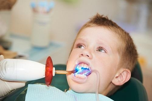 bé 3 tuổi bị sâu răng cửa phải làm sao