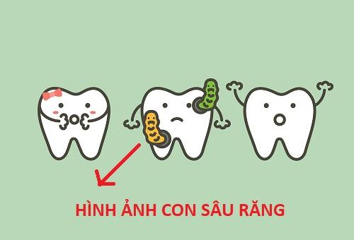 Hình ảnh con sâu răng trông như thế nào