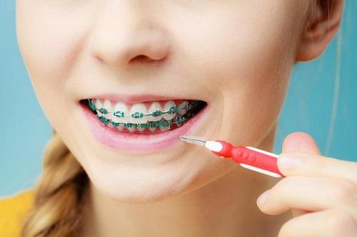 bàn chải kẽ răng dùng bao lâu
